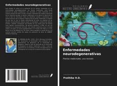 Buchcover von Enfermedades neurodegenerativas