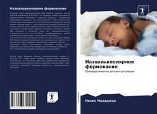 Bookcover of Назоальвеолярное формование