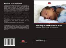 Bookcover of Moulage naso-alvéolaire