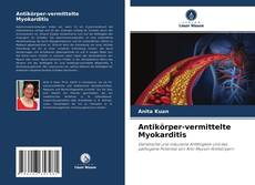 Bookcover of Antikörper-vermittelte Myokarditis