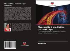 Bookcover of Myocardite à médiation par anticorps