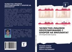 Bookcover of ЧЕЛЮСТНО-ЛИЦЕВОЕ ПРОТЕЗИРОВАНИЕ С ОПОРОЙ НА ИМПЛАНТАТ
