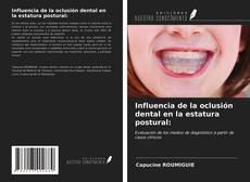 Copertina di Influencia de la oclusión dental en la estatura postural: