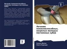 Bookcover of Лечение нежизнеспособных, незрелых молодых постоянных зубов