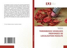 Couverture de THROMBOSES VEINEUSES PROFONDES DE LOCALISATION INSOLITE