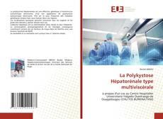 Bookcover of La Polykystose Hépatorénale type multiviscérale