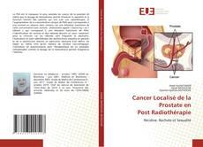 Bookcover of Cancer Localisé de la Prostate en Post Radiothérapie