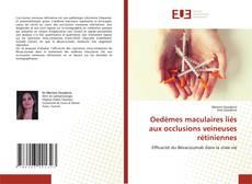 Buchcover von Oedèmes maculaires liés aux occlusions veineuses rétiniennes