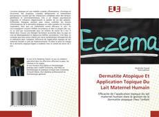 Bookcover of Dermatite Atopique Et Application Topique Du Lait Maternel Humain