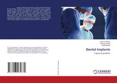 Bookcover of Dental Implants