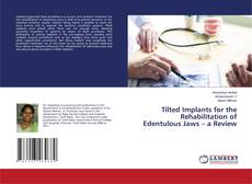 Bookcover of Tilted Implants for the Rehabilitation of Edentulous Jaws – a Review