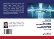 Bookcover of Изучение распространения гиперплазии предстательной железы