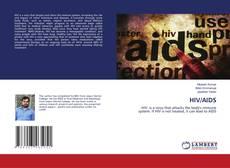 Copertina di HIV/AIDS