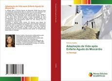 Bookcover of Adaptação de Vida após Enfarte Agudo do Miocárdio