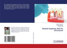 Bookcover of Dental Implants And Its Structures