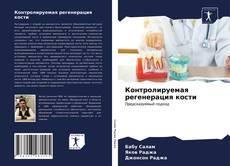 Bookcover of Контролируемая регенерация кости