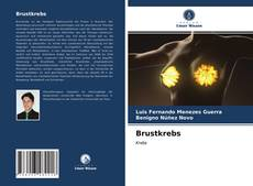 Capa do livro de Brustkrebs
