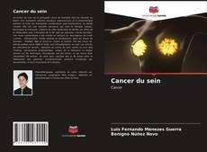 Borítókép a  Cancer du sein - hoz