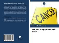 Akt und einige Arten von Krebs的封面
