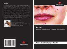 Bookcover of Acne: