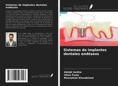 Portada del libro de Sistemas de implantes dentales endóseos