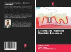 Portada del libro de Sistemas de Implantes Dentários Endósseos