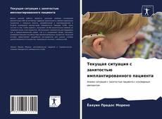 Bookcover of Текущая ситуация с занятостью имплантированного пациента
