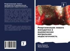 Реорганизация левого желудочка и ишемическая митральная недостаточность kitap kapağı