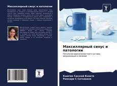Bookcover of Максиллярный синус и патологии
