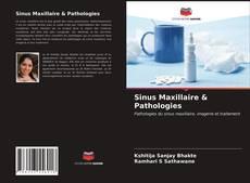 Borítókép a  Sinus Maxillaire & Pathologies - hoz
