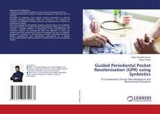 Guided Periodontal Pocket Recolonisation (GPR) using Synbiotics kitap kapağı