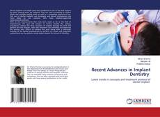 Bookcover of Recent Advances in Implant Dentistry