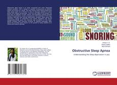 Bookcover of Obstructive Sleep Apnea