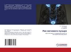 Bookcover of Рак мочевого пузыря