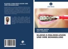 Обложка KLASSE-II-MALOKKLUSION UND IHRE BEHANDLUNG