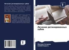 Bookcover of Лечение ретинированных зубов