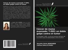 Bookcover of Cáncer de mama avanzado: T-DM1 un doble golpe contra el tumor