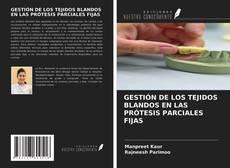 Обложка GESTIÓN DE LOS TEJIDOS BLANDOS EN LAS PRÓTESIS PARCIALES FIJAS