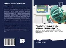Bookcover of Тяжесть чешуек при остром панкреатите