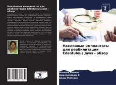 Bookcover of Наклонные имплантаты для реабилитации Edentulous Jaws - обзор