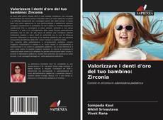 Bookcover of Valorizzare i denti d'oro del tuo bambino: Zirconia
