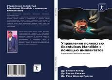 Bookcover of Управление полностью Edentulous Mandible с помощью имплантатов