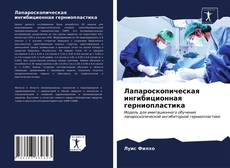 Лапароскопическая ингибиционная герниопластика kitap kapağı