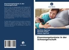 Bookcover of Eisenmangelanämie in der Schwangerschaft