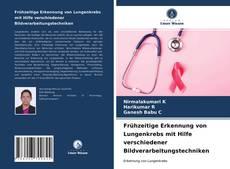 Bookcover of Frühzeitige Erkennung von Lungenkrebs mit Hilfe verschiedener Bildverarbeitungstechniken