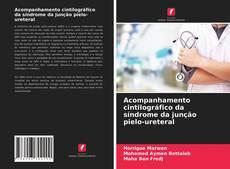 Buchcover von Acompanhamento cintilográfico da síndrome da junção pielo-ureteral