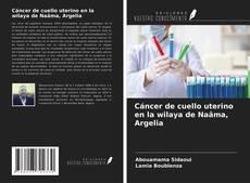 Portada del libro de Cáncer de cuello uterino en la wilaya de Naâma, Argelia