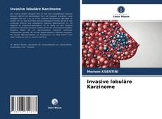 Borítókép a  Invasive lobuläre Karzinome - hoz