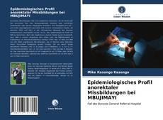 Bookcover of Epidemiologisches Profil anorektaler Missbildungen bei MBUJIMAYI