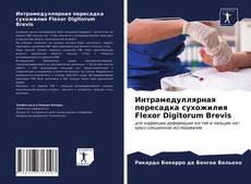 Bookcover of Интрамедуллярная пересадка сухожилия Flexor Digitorum Brevis